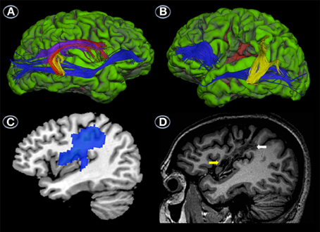 the neuropsychology korsakoff syndrome psychology essay Tourette syndrome is one type of tic disorder tics are involuntary, repetitive movements and vocalizations tic disorders are distinguished by the types.